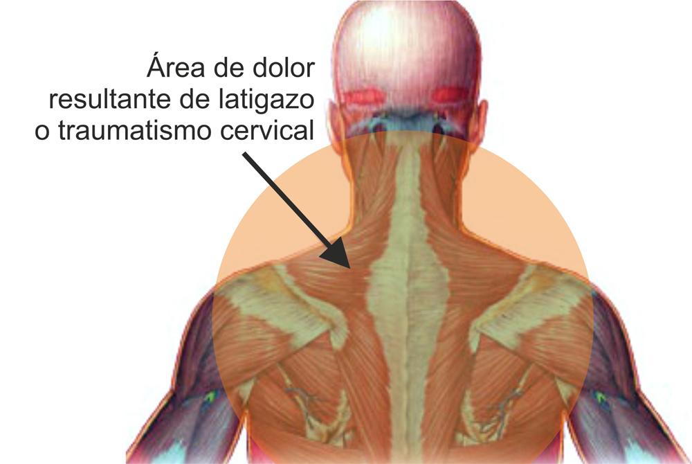 dolorcervical